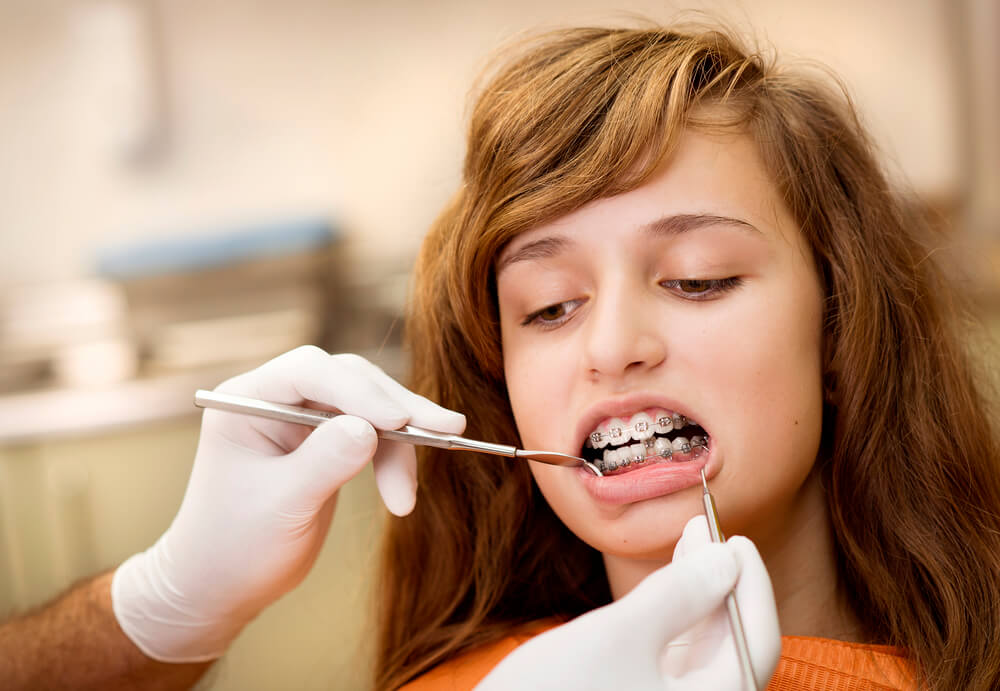 Perfect age for tooth extraction and wearing braces